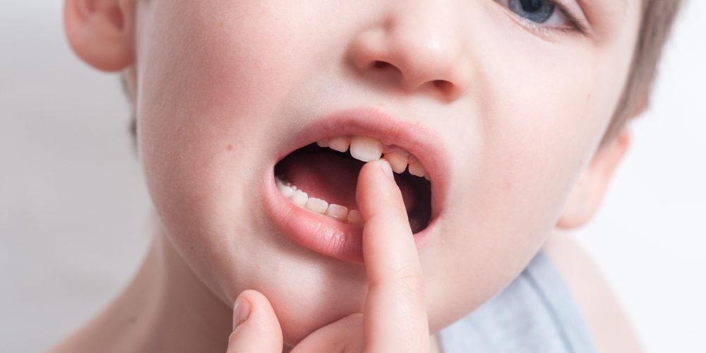 diastema dentale bambini
